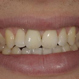 Efekty leczenia dentystycznego - 4_54fd88729b422.JPG