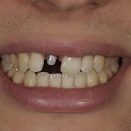 Efekty leczenia dentystycznego - 0_54fd88299b41f.JPG