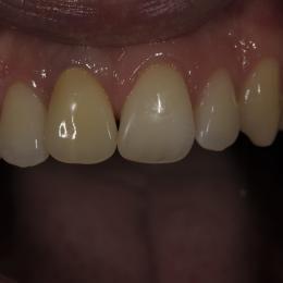 Efekty leczenia dentystycznego - 1_54fd88599b421.JPG