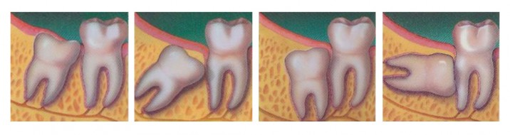 Chirurgia zębów - podgląd